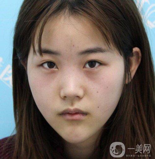 """武汉希思特杨权明""""鼻综合+全切双眼皮""""三个月恢复记录,附真实对比照"""