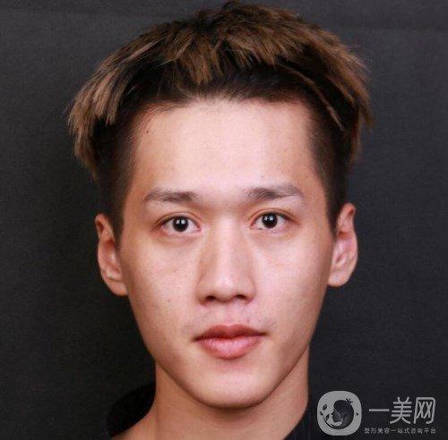 深圳美莱梁晓健做鼻综合怎么样?真人日记曝光