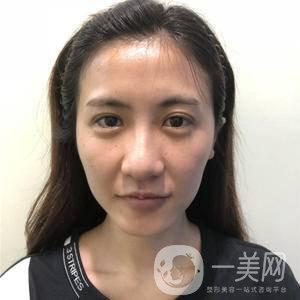 广州艺美张涛自体脂肪填充全脸怎么样?真实案例