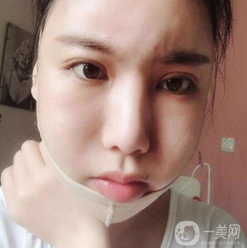 说说我在上海首尔丽格崔荣达哪里做的下颌角整形体验,内附大量真实图片