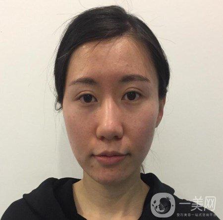 上海百达丽医疗美容张程面部脂肪填充恢复案例