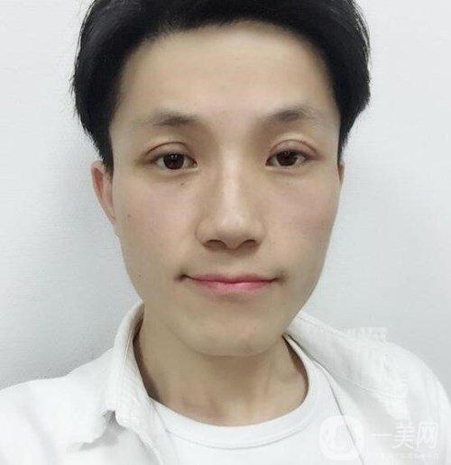 西安高一生医疗美容医院张林宏切开双眼皮术后七天恢复图