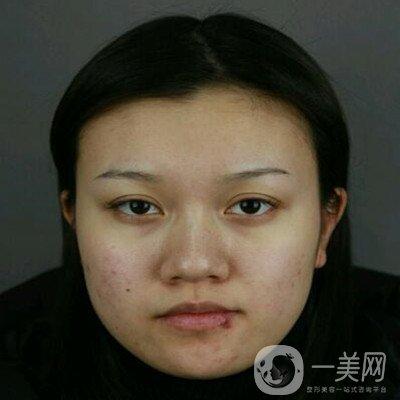 我在上海首尔丽格朴兴植做的下颌角切除,大量照片分享