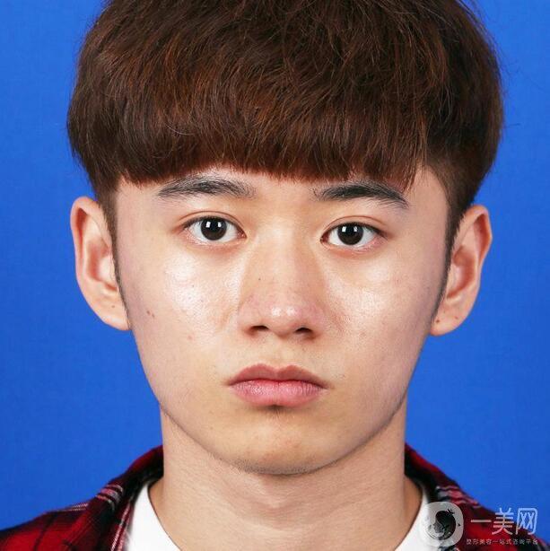 男生在上海美莱找欧阳春做鼻综合整形手术感受分享