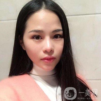 上海时光何晋龙颧骨内推+磨下颌角整形小V脸不是梦