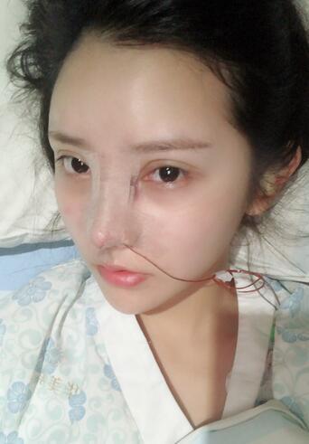 假体隆鼻过程分享及术后恢复效果展示~