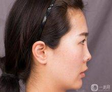 上海伯思立徐文龙主任鼻综合案例一则,对比照