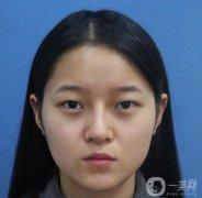 杭州格莱美张霞飞割双眼皮案例分享