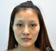 武汉希思特杨权明自体脂肪全脸填充恢复记录,附对比图