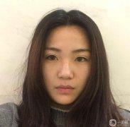 西安高一生医疗美容医院刘军切开双眼皮恢复记录分享