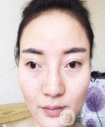 上海九院沈国芳下颌角磨骨手术,V-line瓜子脸成形术日记分享
