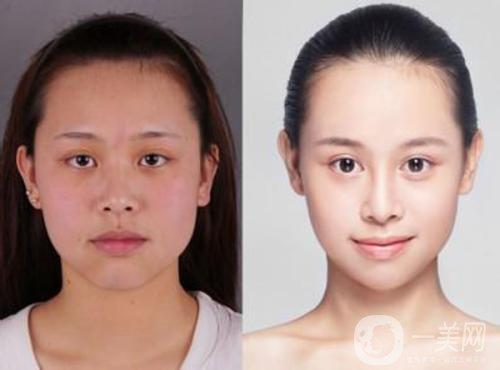 微创改脸型多少钱 费用详情介绍