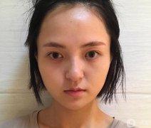 上海玫瑰医疗美容李鸿君玻尿酸垫下巴效果反馈一览