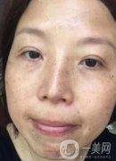 美莱祛斑手术效果分享 祛斑前后对比 长斑妈妈大逆袭