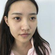 鼻软骨隆鼻术前术后100天效果图分享