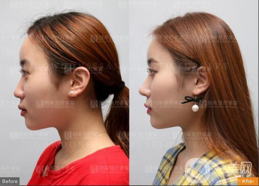 深圳回来医疗鼻部整形案例