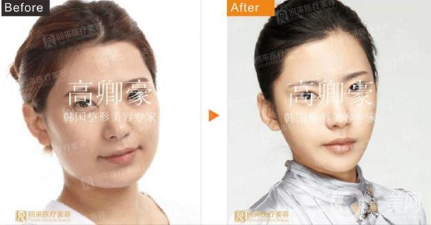 深圳回来医疗面部轮廓案例