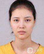 上海华美李健面部脂肪填充+隆鼻三个月